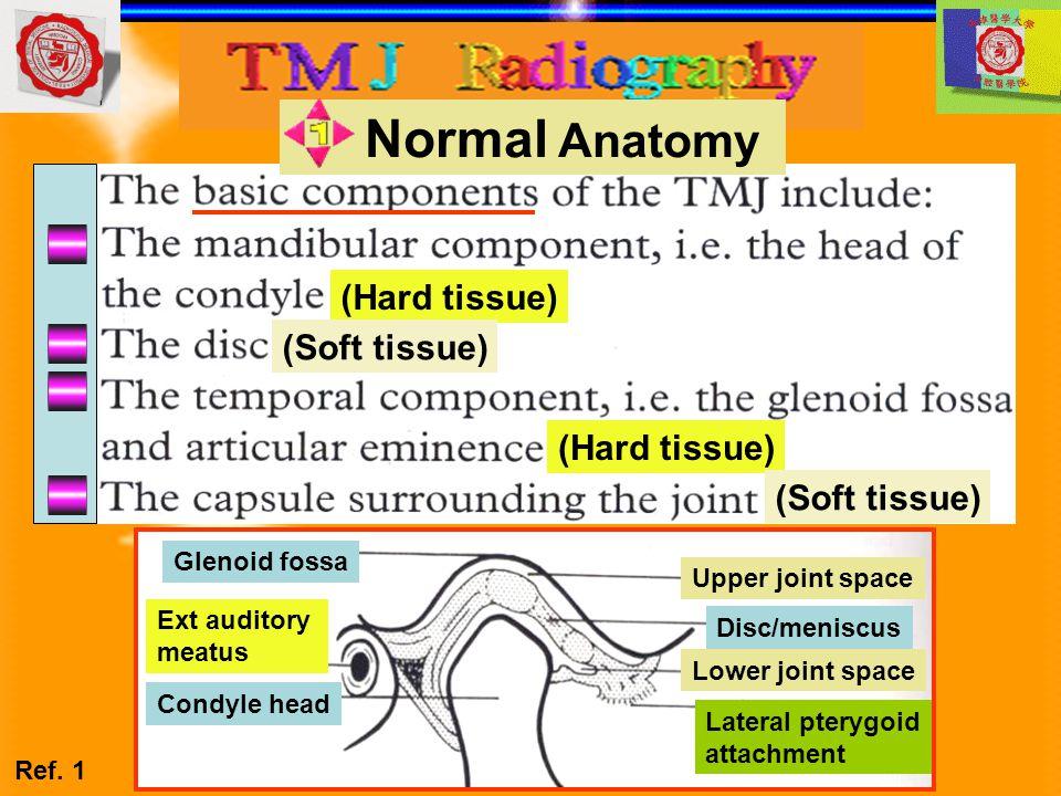 Normal Anatomy (Hard tissue) (Soft tissue) (Hard tissue) (Soft tissue)