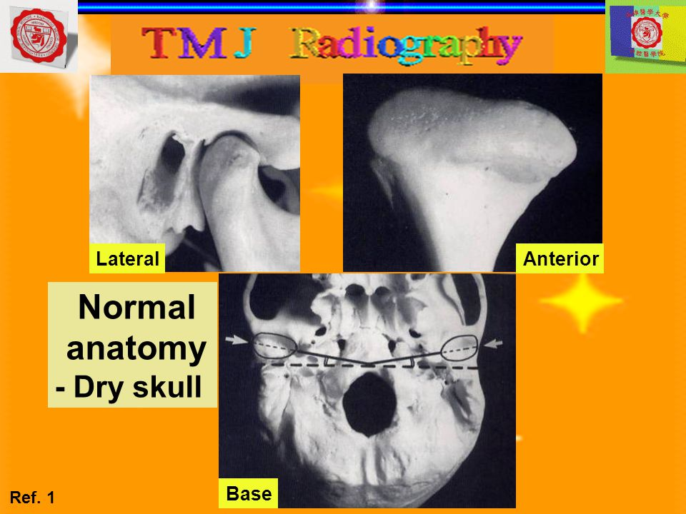 Lateral Anterior Normal anatomy - Dry skull Base Ref. 1