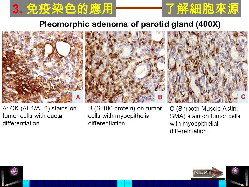 3. 免疫染色的應用 了解細胞來源 Pleomorphic adenoma of parotid gland (400X)