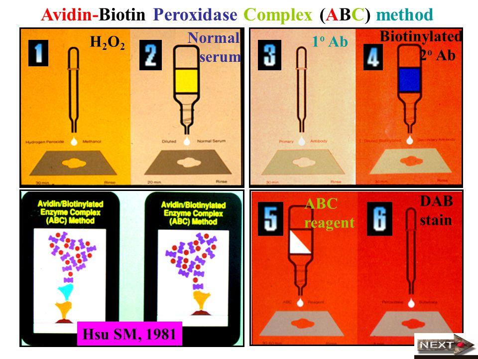 Avidin-Biotin Peroxidase Complex (ABC) method
