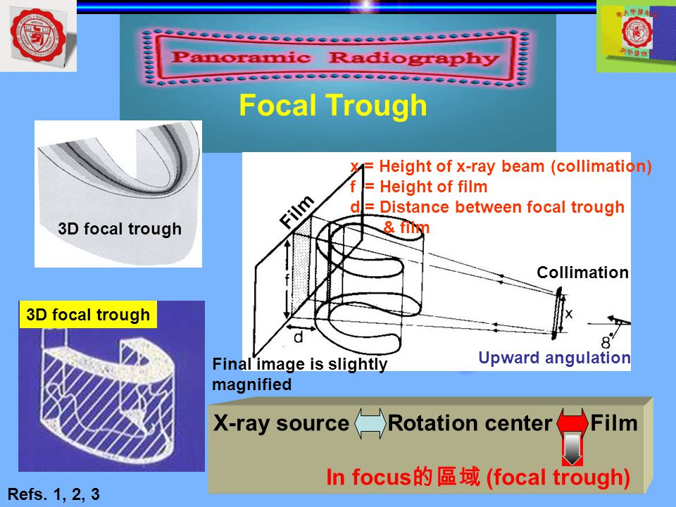 X-ray source Rotation center Film In focus的區域 (focal trough)