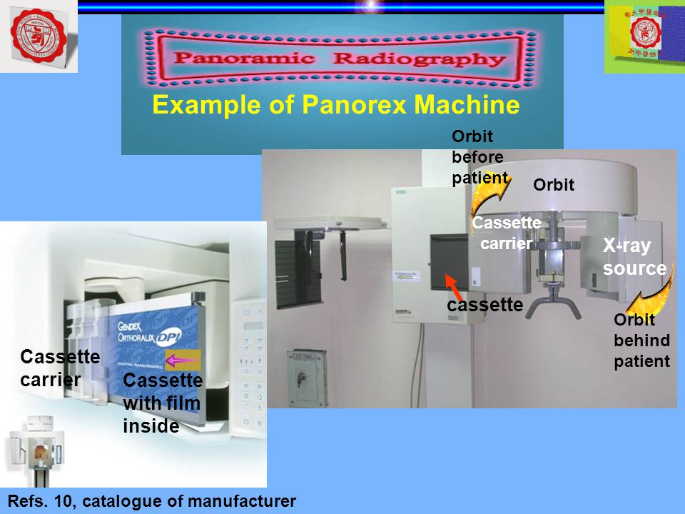 Example of Panorex Machine