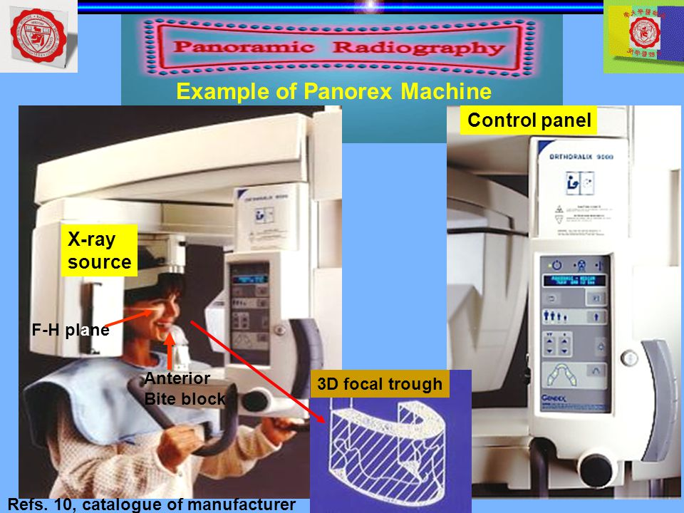 panorex machine