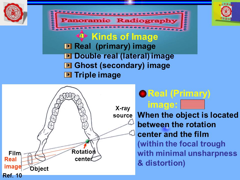 Kinds of Image Real (Primary) image: Real (primary) image