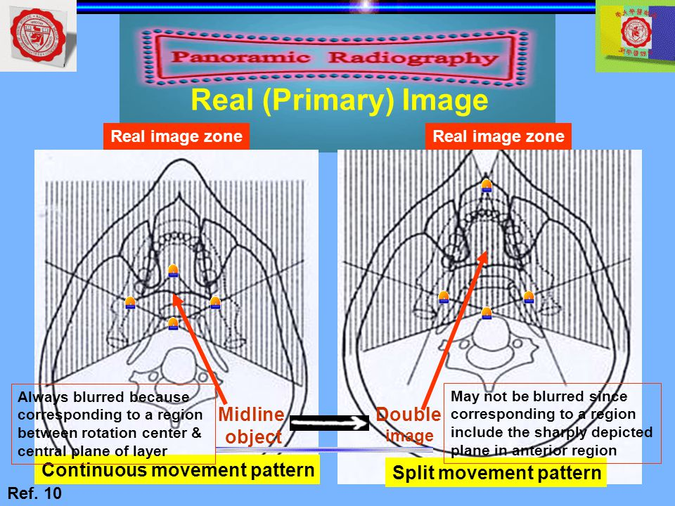 Real (Primary) Image Midline object Double Continuous movement pattern