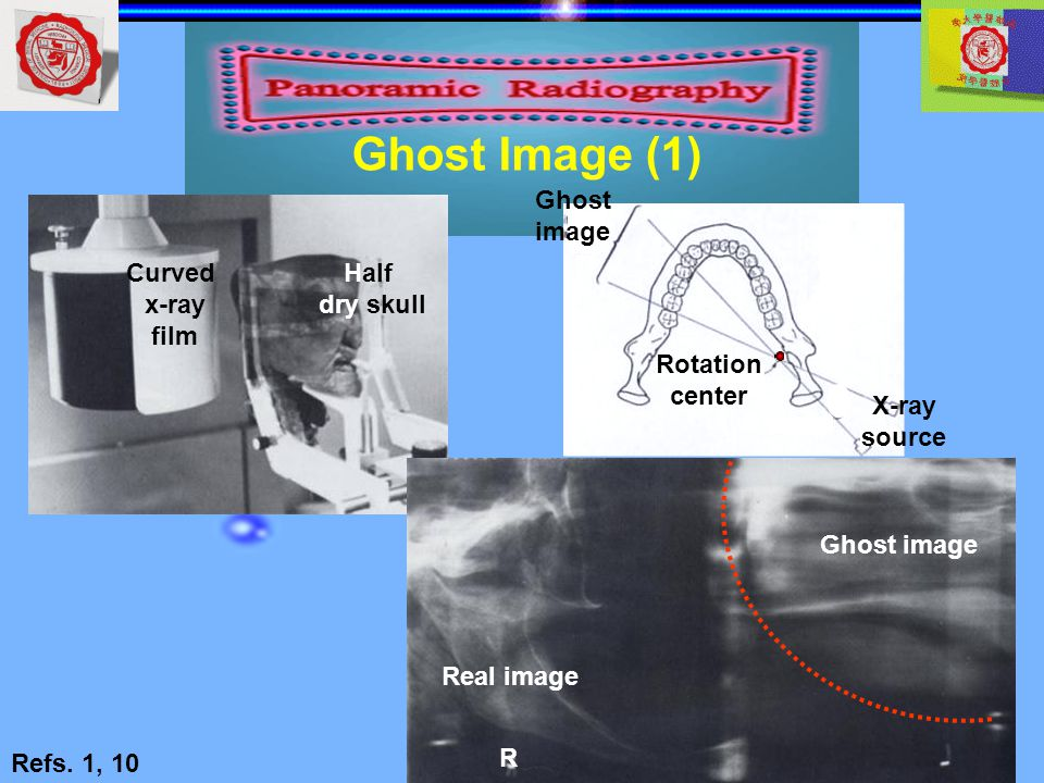 Ghost Image (1) Ghost image X-ray source Rotation center Curved x-ray
