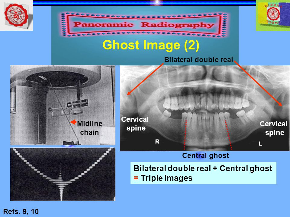 Ghost Image (2) Bilateral double real + Central ghost = Triple images