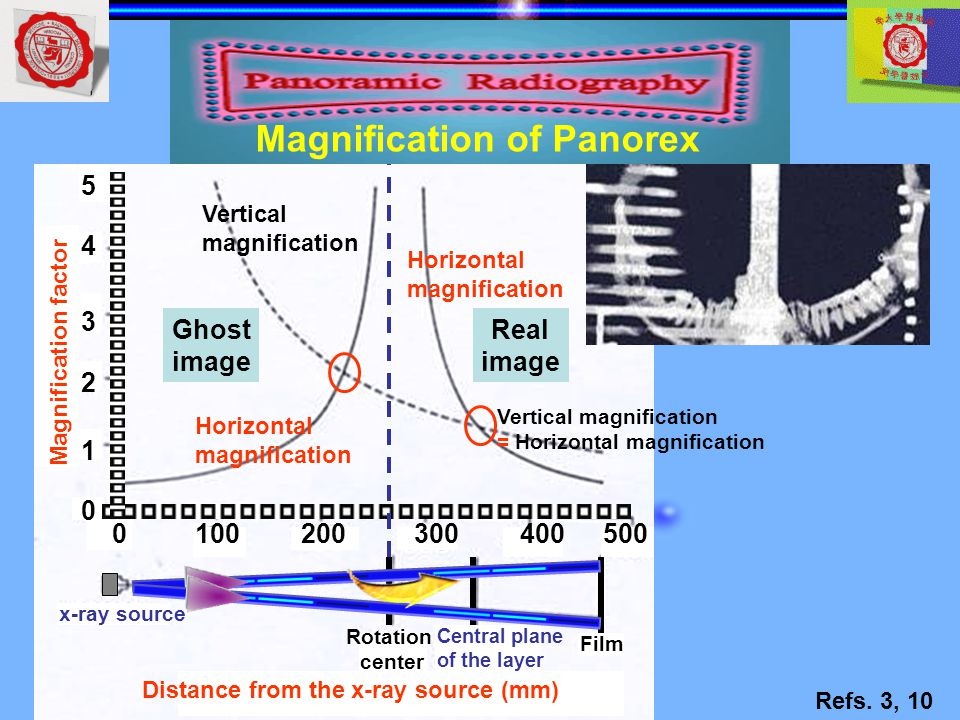Magnification of Panorex