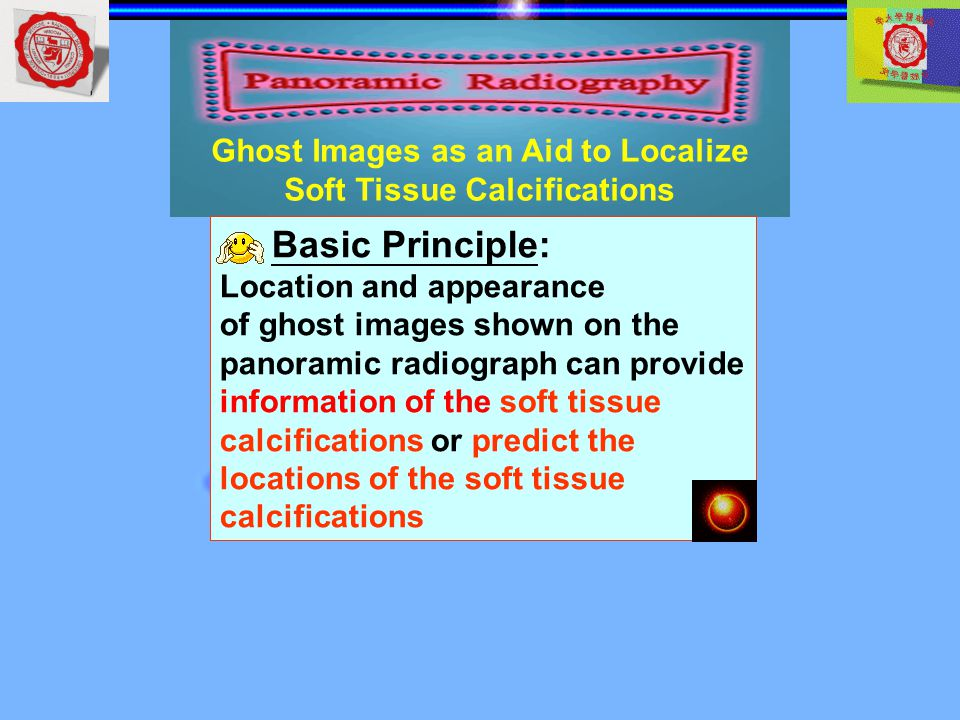 Ghost Images as an Aid to Localize Soft Tissue Calcifications