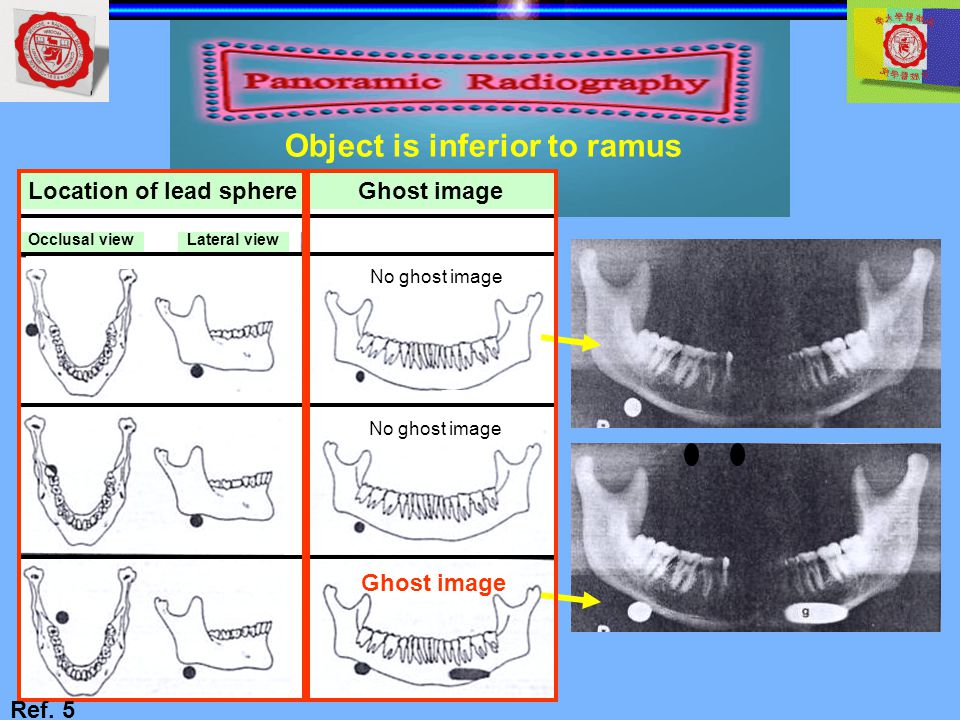 Object is inferior to ramus