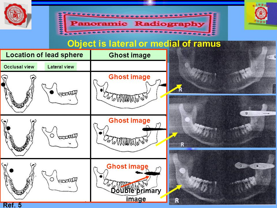 Object is lateral or medial of ramus