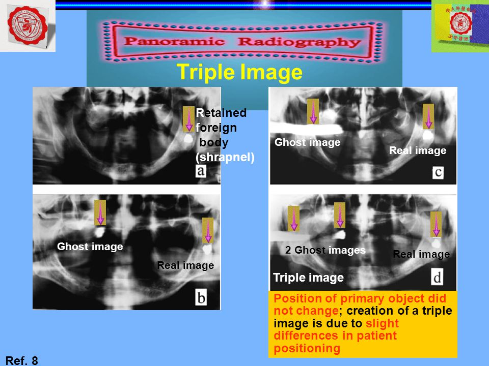 Triple Image Retained foreign body (shrapnel) Triple image