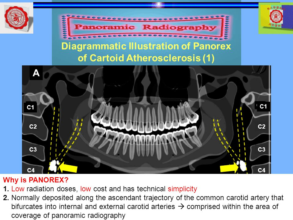 Diagrammatic Illustration of Panorex of Cartoid Atherosclerosis (1)