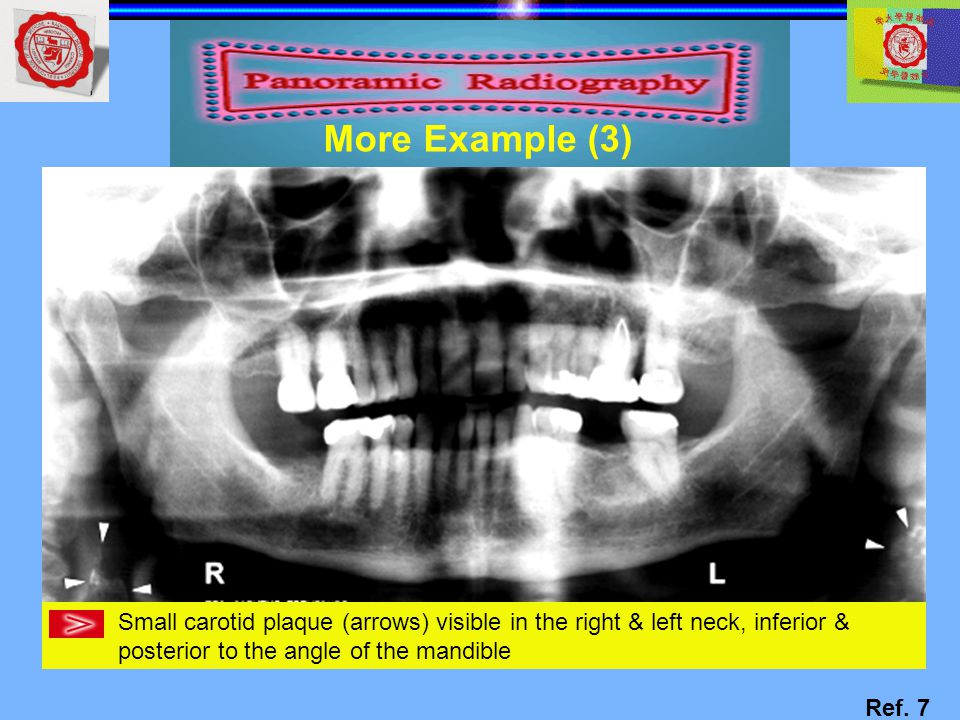 More Example (3) Small carotid plaque (arrows) visible in the right & left neck, inferior & posterior to the angle of the mandible.