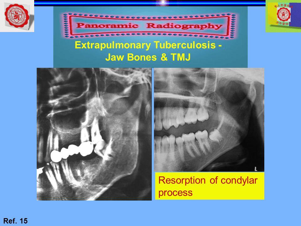 Extrapulmonary Tuberculosis -