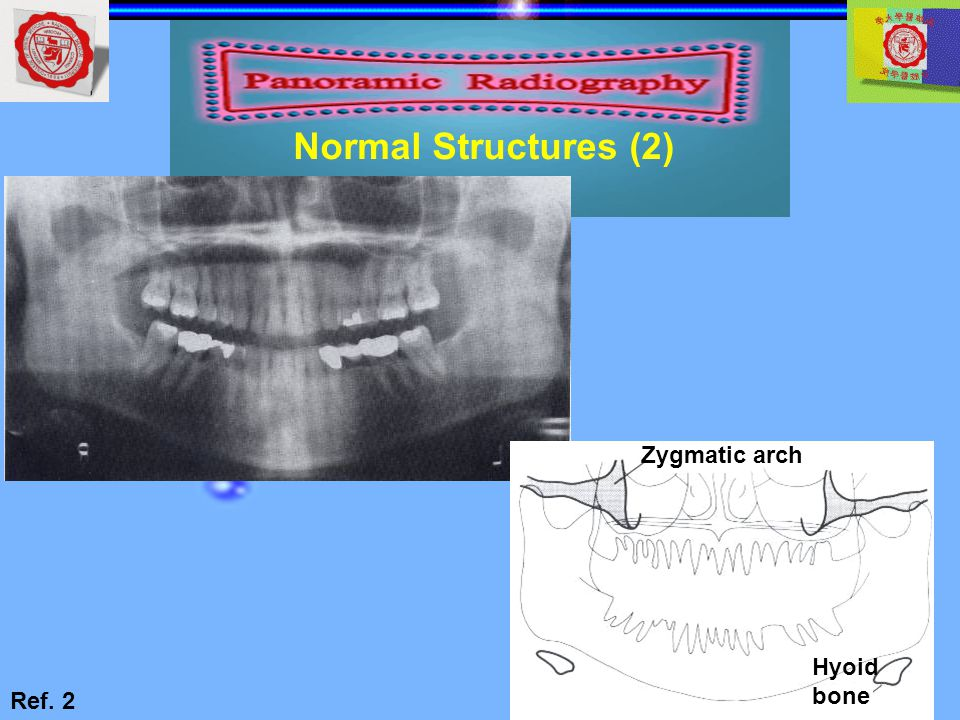 Normal Structures (2) Zygmatic arch Hyoid bone Ref. 2
