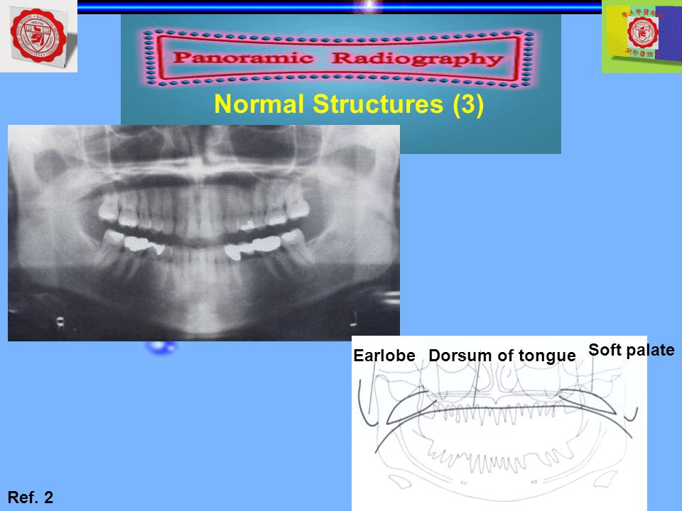 Normal Structures (3) Dorsum of tongue Soft palate Earlobe Ref. 2