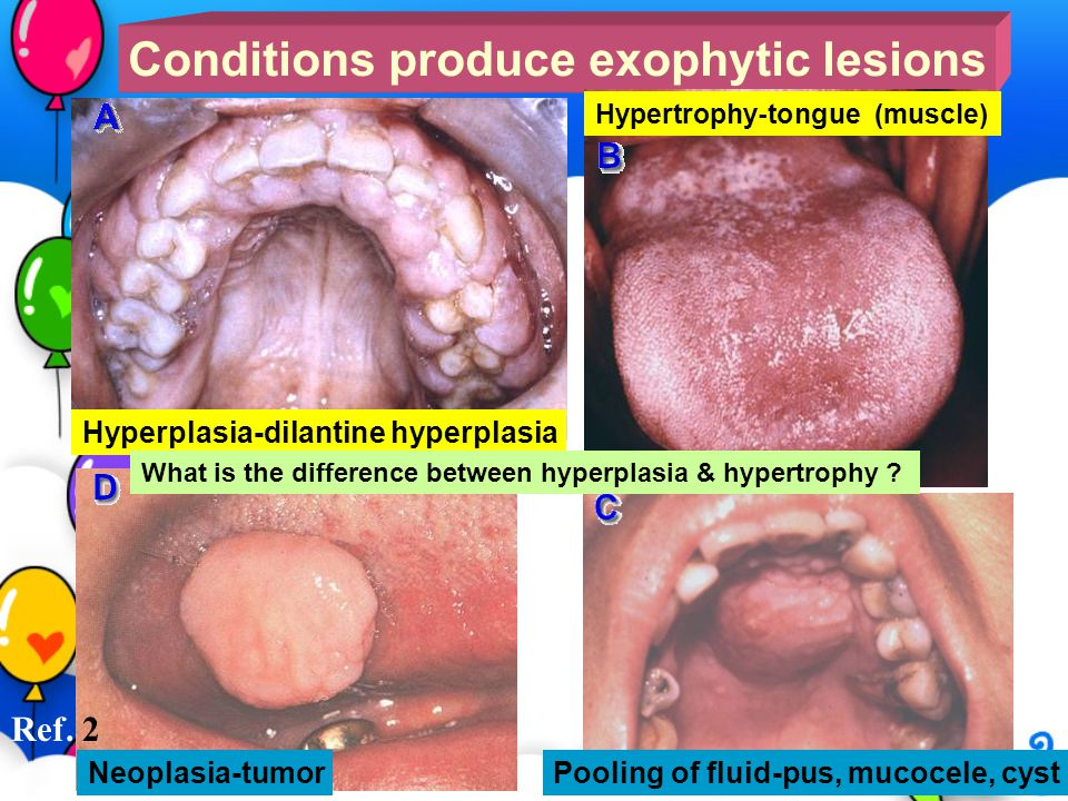 Conditions produce exophytic lesions