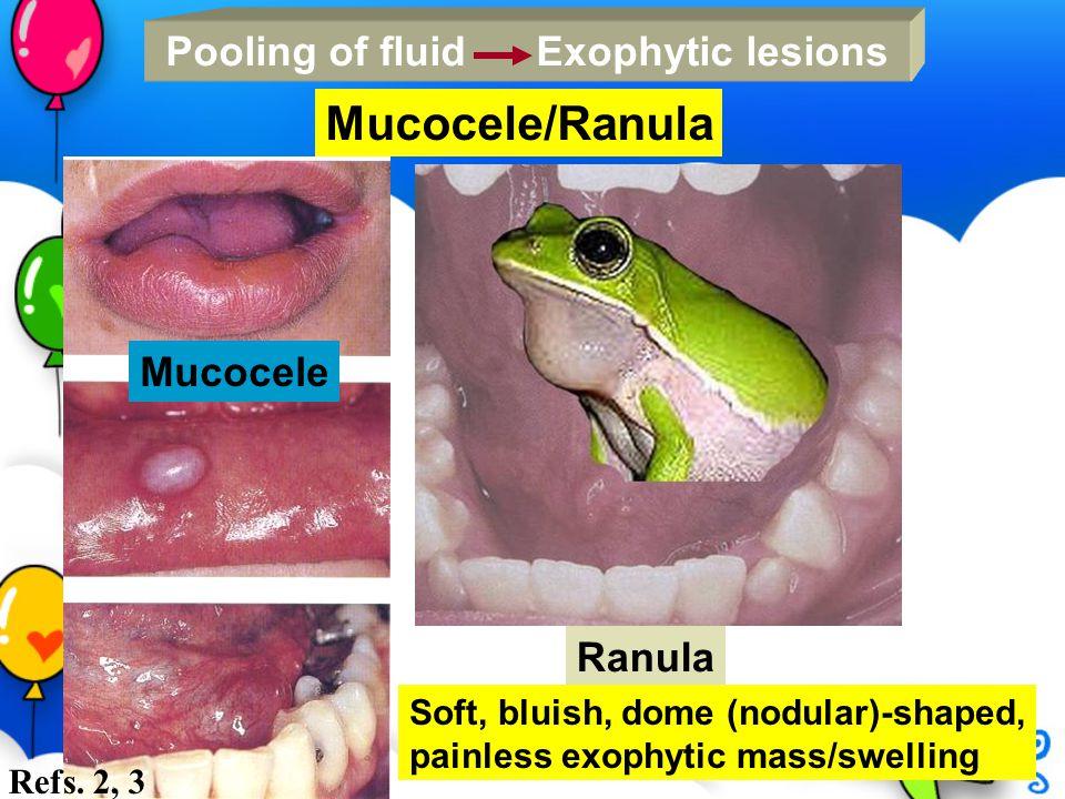Mucocele/Ranula Pooling of fluid Exophytic lesions Mucocele Ranula