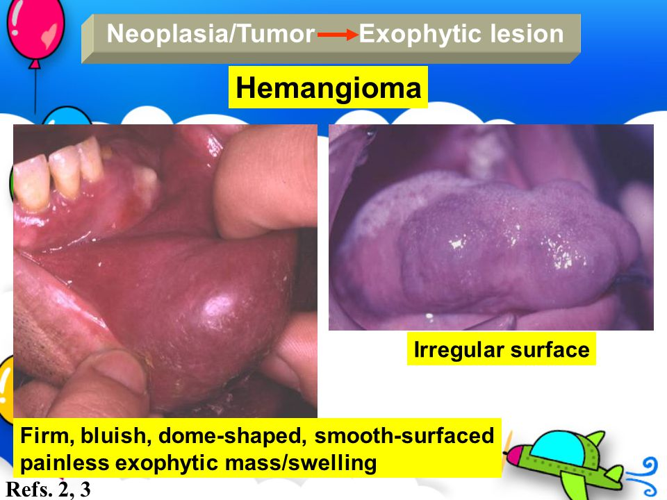 Hemangioma Neoplasia/Tumor Exophytic lesion Irregular surface