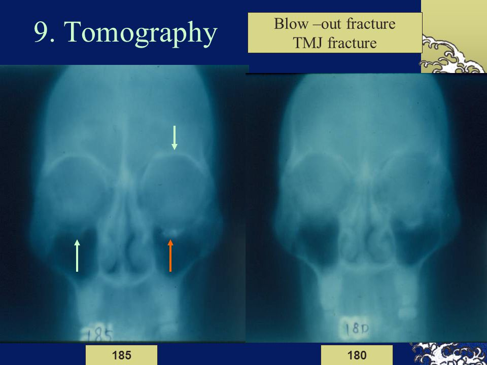 9. Tomography Blow –out fracture TMJ fracture 185 180