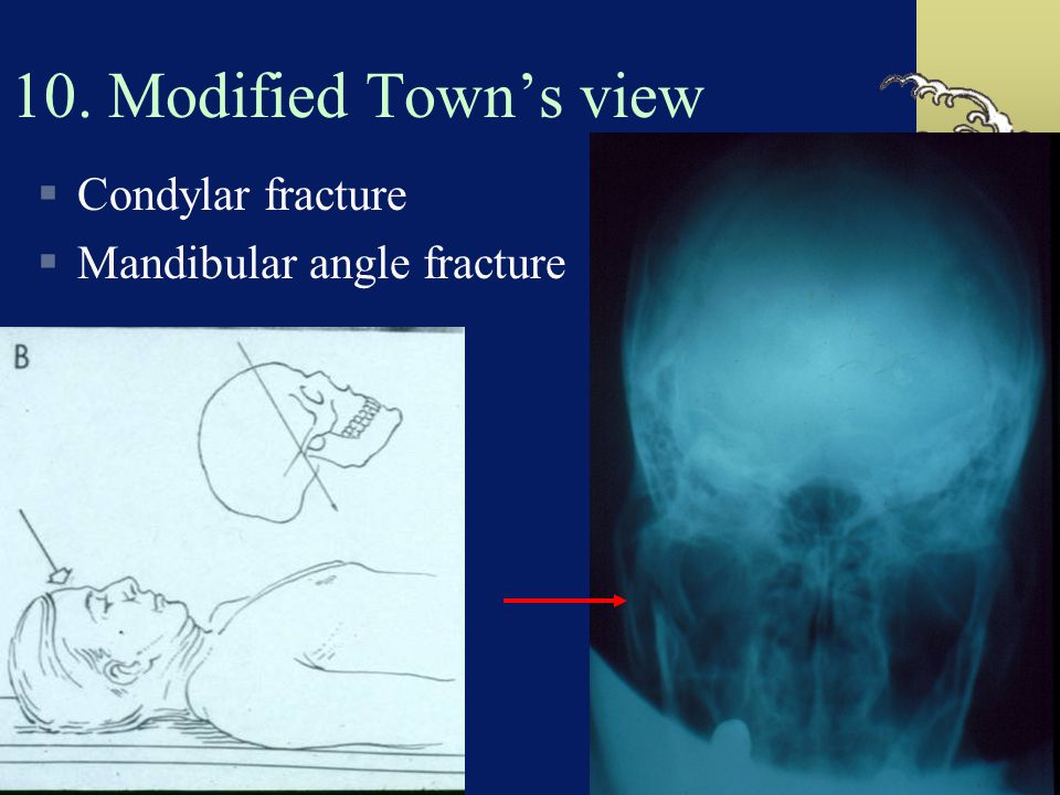10. Modified Town's view Condylar fracture Mandibular angle fracture