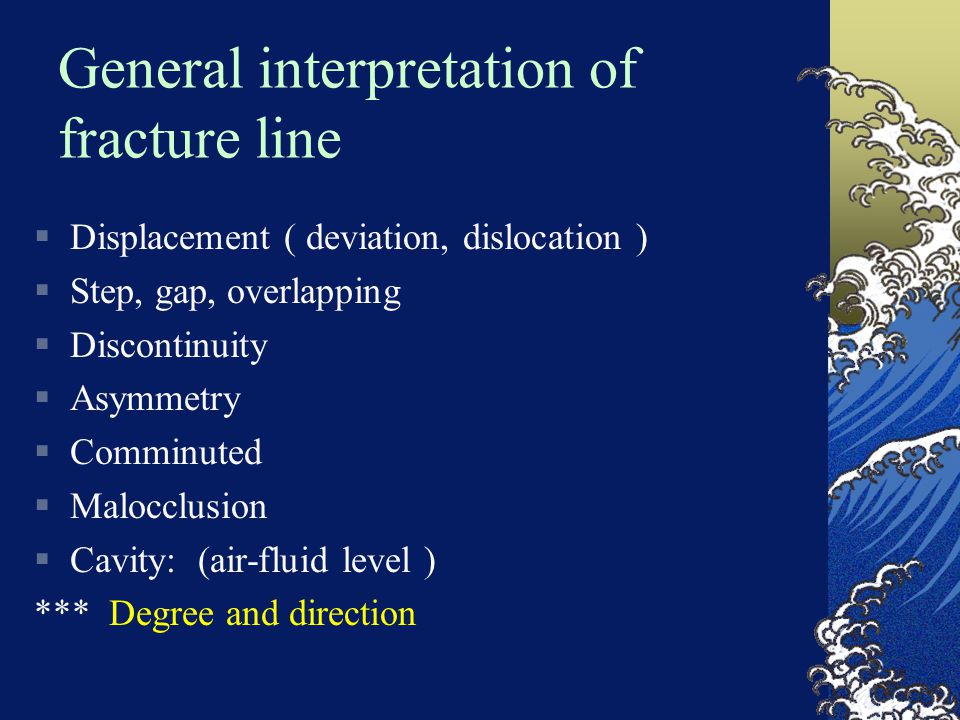 General interpretation of fracture line