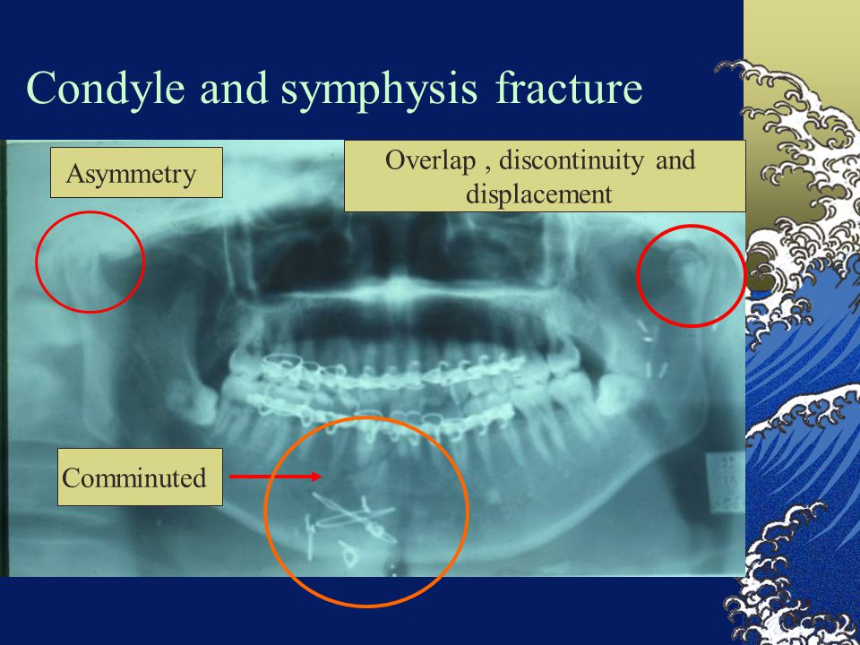 Condyle and symphysis fracture