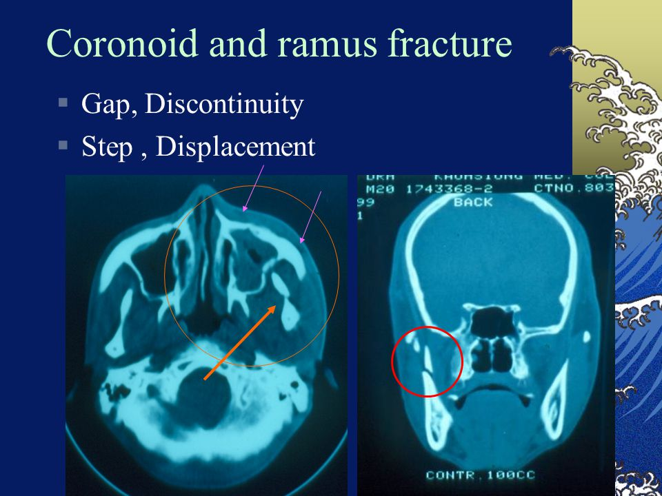 Coronoid and ramus fracture