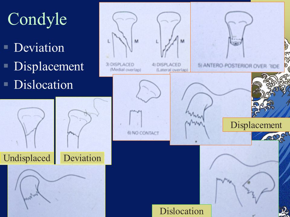 Condyle Deviation Displacement Dislocation Displacement Undisplaced