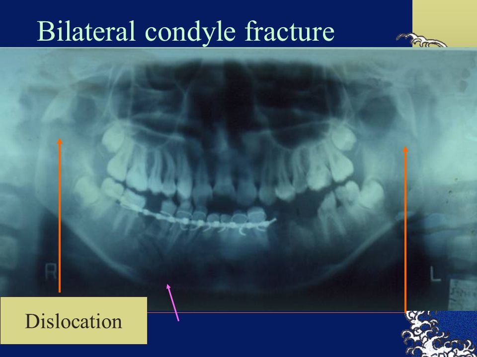 Bilateral condyle fracture