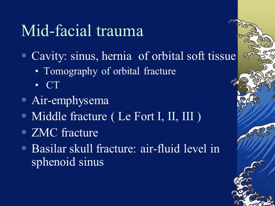 Mid-facial trauma Cavity: sinus, hernia of orbital soft tissue