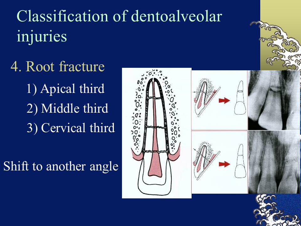 Classification of dentoalveolar injuries