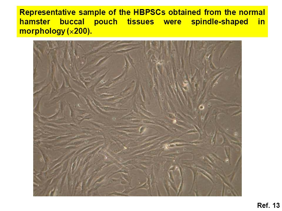 Representative sample of the HBPSCs obtained from the normal hamster buccal pouch tissues were spindle-shaped in morphology (200).