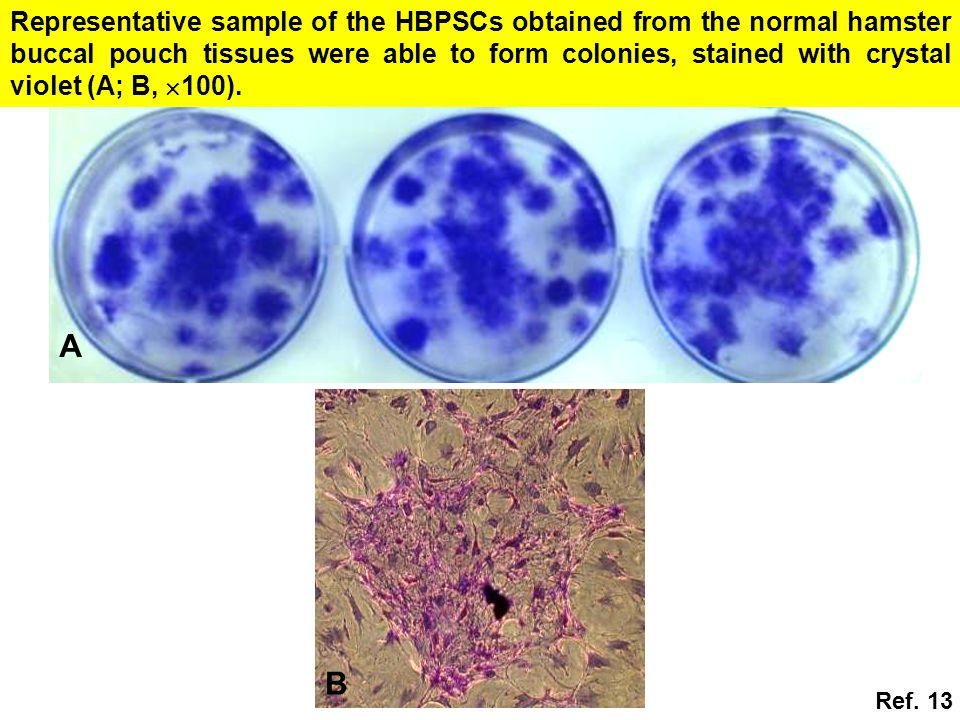 Representative sample of the HBPSCs obtained from the normal hamster buccal pouch tissues were able to form colonies, stained with crystal violet (A; B, 100).