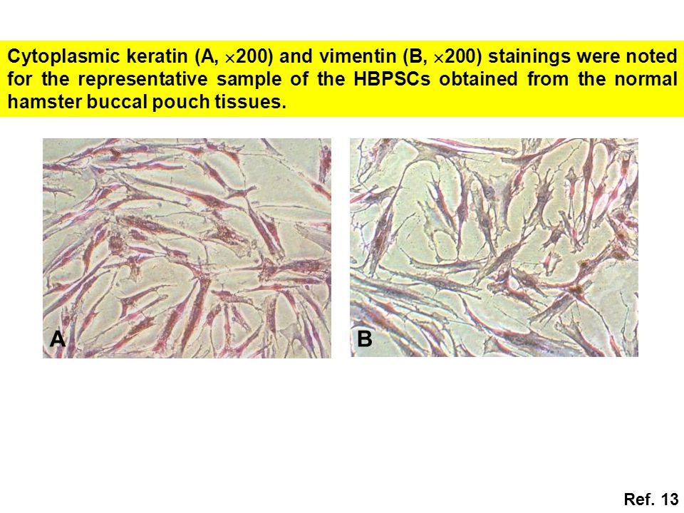 Cytoplasmic keratin (A, 200) and vimentin (B, 200) stainings were noted for the representative sample of the HBPSCs obtained from the normal hamster buccal pouch tissues.
