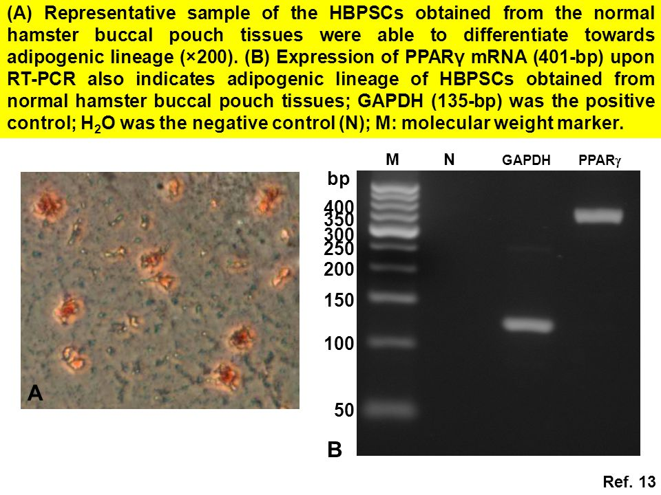 (A) Representative sample of the HBPSCs obtained from the normal hamster buccal pouch tissues were able to differentiate towards adipogenic lineage (×200). (B) Expression of PPARγ mRNA (401-bp) upon RT-PCR also indicates adipogenic lineage of HBPSCs obtained from normal hamster buccal pouch tissues; GAPDH (135-bp) was the positive control; H2O was the negative control (N); M: molecular weight marker.