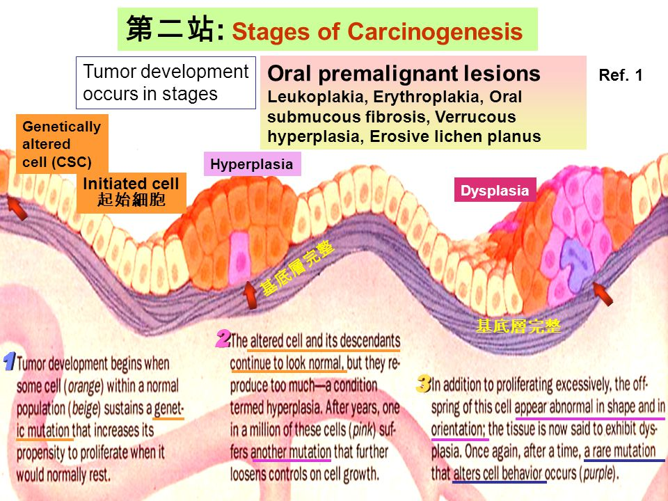 第二站: Stages of Carcinogenesis