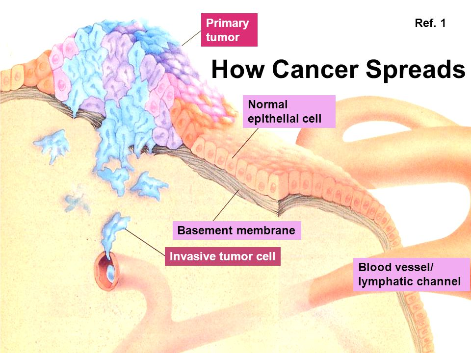 How Cancer Spreads Primary Ref. 1 tumor Normal epithelial cell
