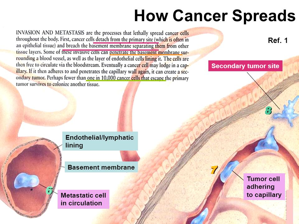 How Cancer Spreads Ref. 1 Secondary tumor site Endothelial/lymphatic