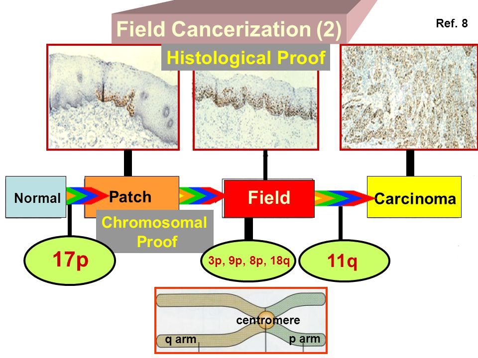 Field Cancerization (2)
