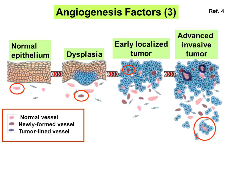 Angiogenesis Factors (3)