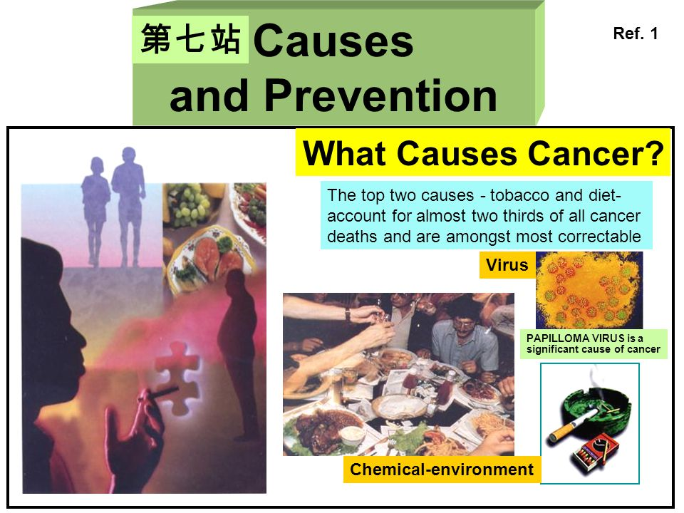 Causes and Prevention 第七站 What Causes Cancer Ref. 1