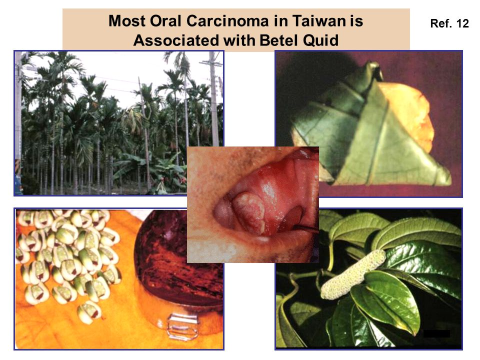 Most Oral Carcinoma in Taiwan is Associated with Betel Quid