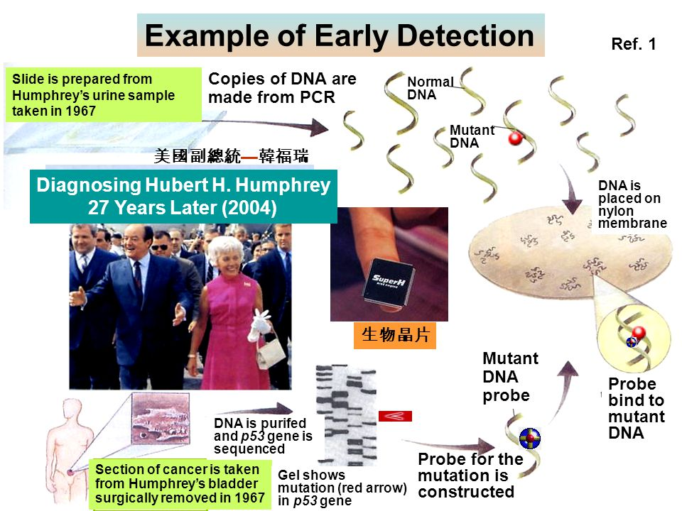 Diagnosing Hubert H. Humphrey