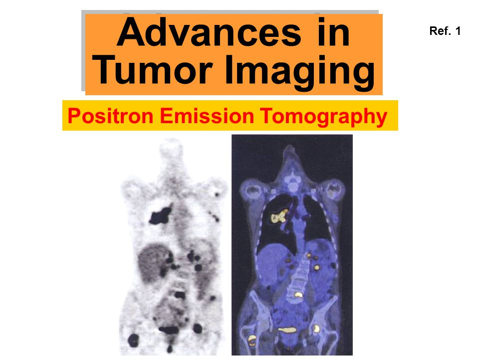 Advances in Tumor Imaging