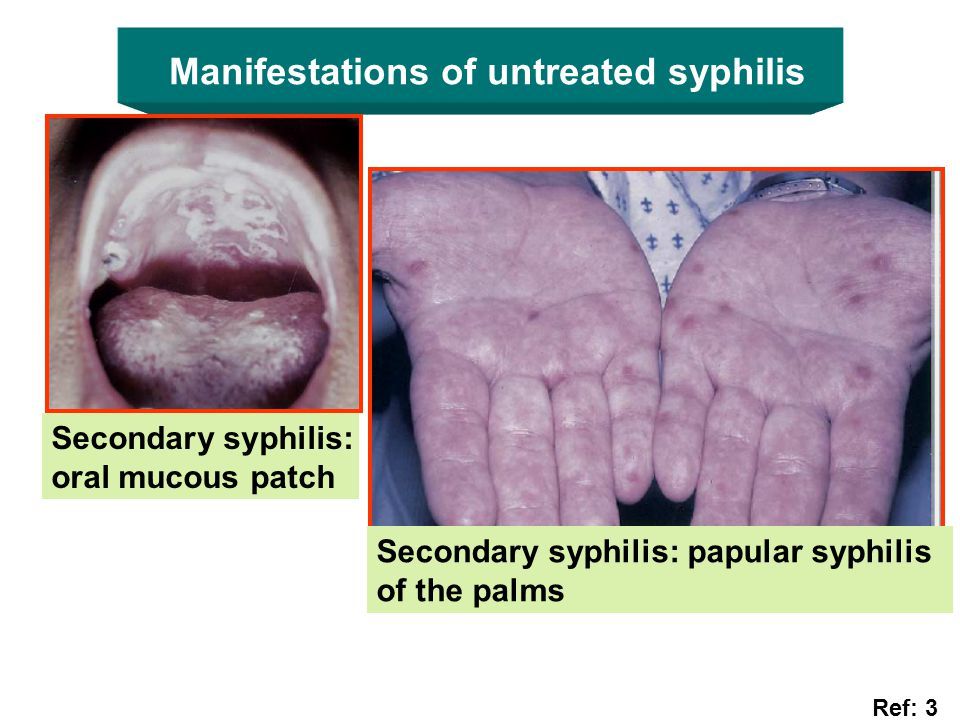 Manifestations of untreated syphilis