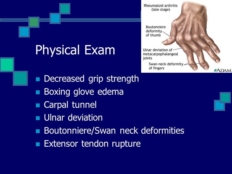 Physical Exam Decreased grip strength Boxing glove edema Carpal tunnel
