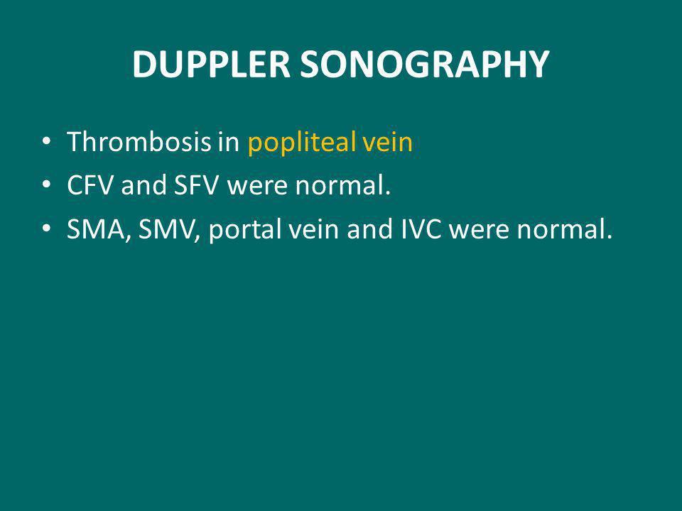DUPPLER SONOGRAPHY Thrombosis in popliteal vein