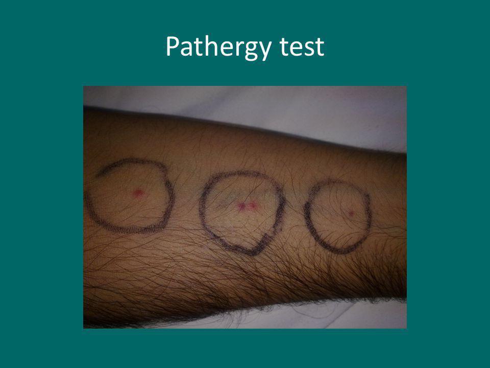 Pathergy test